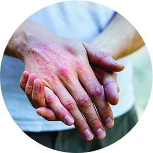 hand Skin Disorder