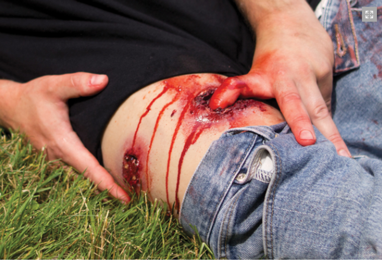 Techline Trauma Wearable Gun Shot Wound to Leg in action.