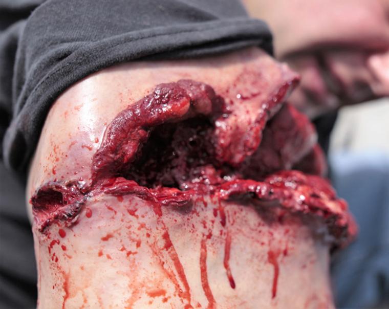 Techline Trauma Wearable Wound in Action Gunshot Wound To Bicep.