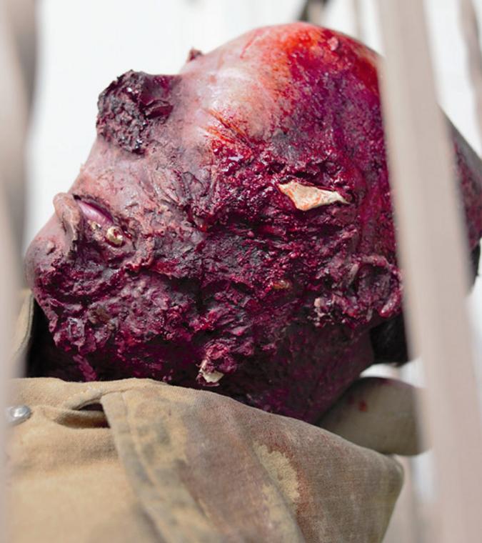 Blast Burn Face With Hard Bone Wearable Wound.