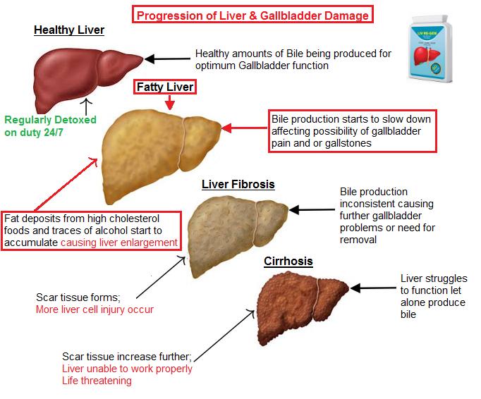 fatty-liver-damage.png