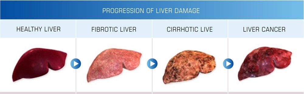 liver-cancer.jpg