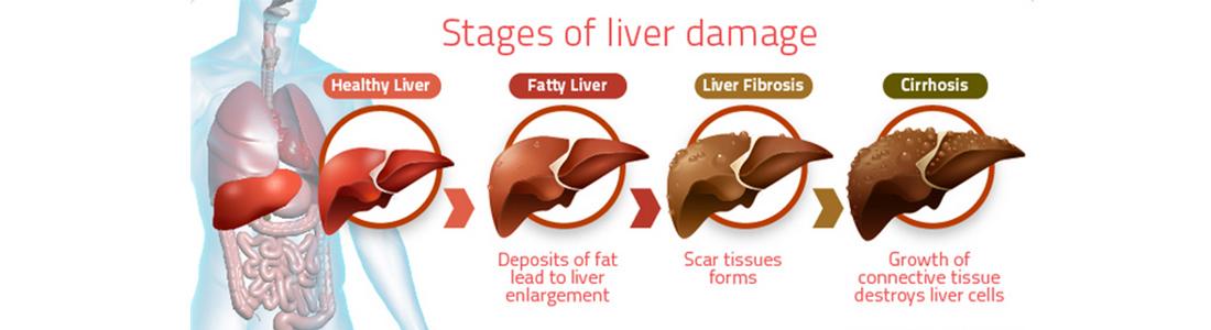 non-alcoholic-fatty-liver-disease-nafld.jpg