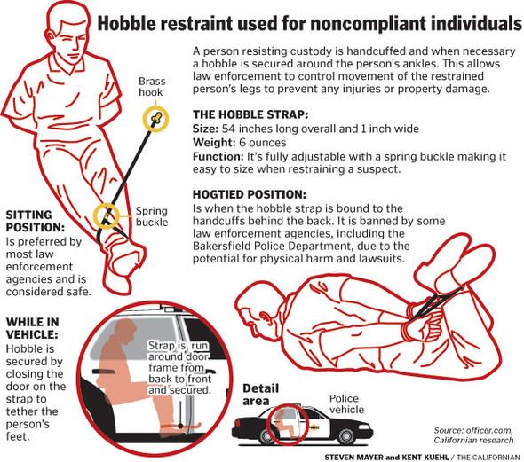 KZ Hobble Restraint