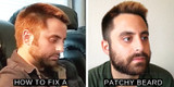 Fix Your Patchy Beard for Good: The Top Ways to Cover Bald Spots