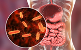 Why Butyrate is So Important for a Healthy Gut - and a Healthy Life