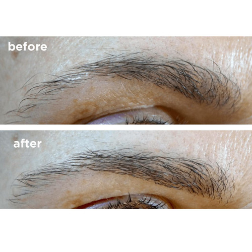 6fb4ca350f6 Brow and Lash Growth and Extender Serum | Skin Actives