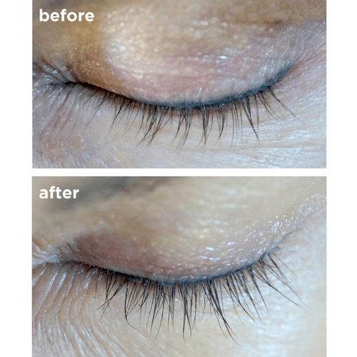 486cd42dee2 ... Before and after image of Brow and Lash Growth Serum by Skin Actives ...