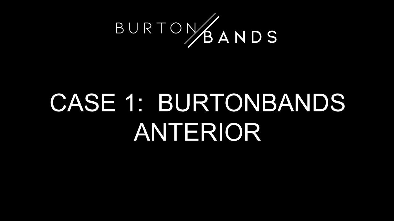 bb-anterior-1.1.jpg