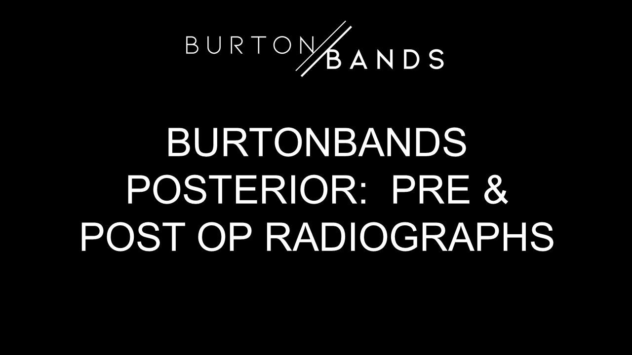 bb-post-radio.jpg