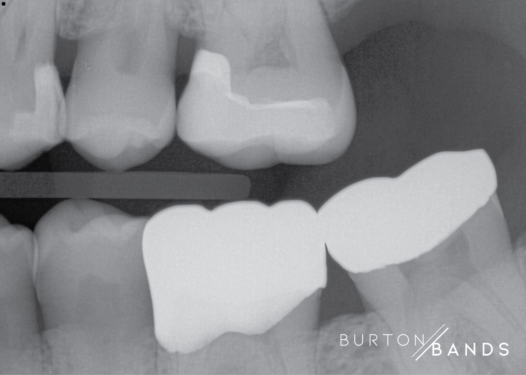 burton-image-4.jpg