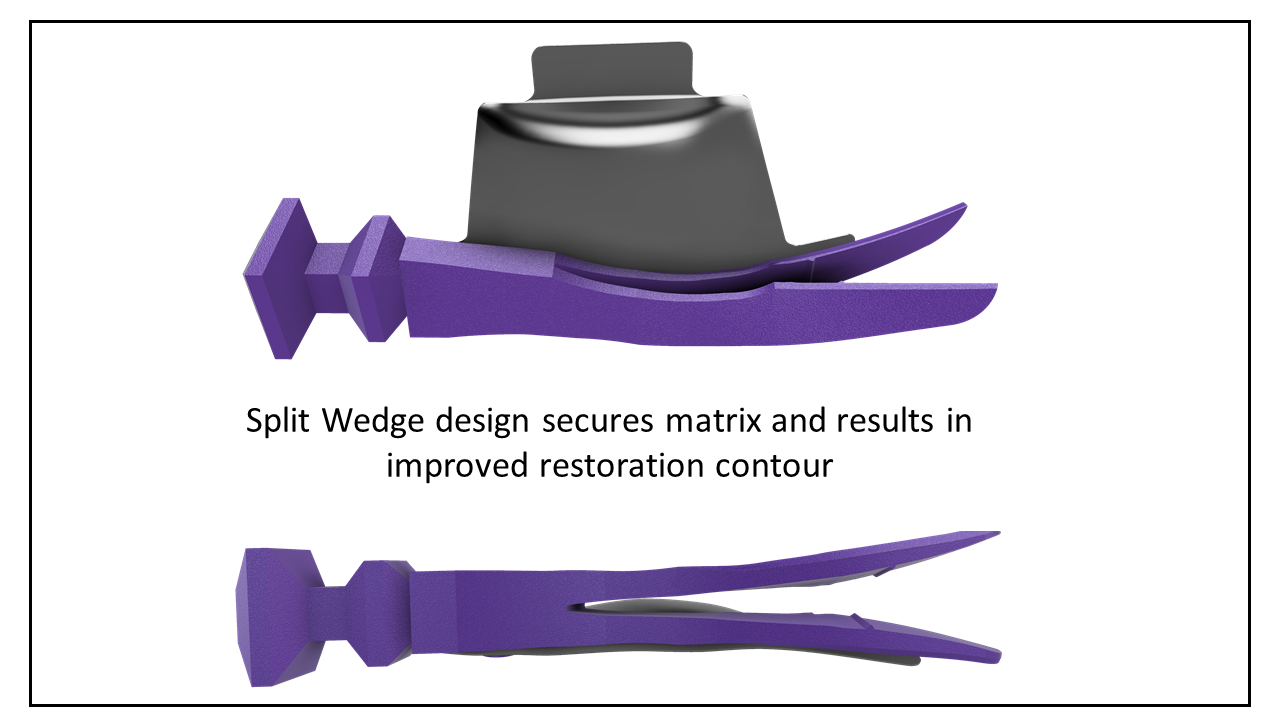 what-s-new-split-wedge.png