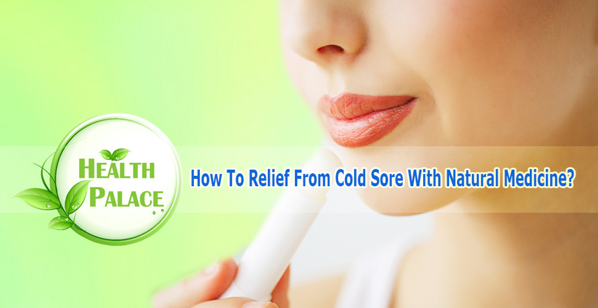 How to Treat Cold Sores with Natural Medicine? | How to Prevent Cold Sores Naturally?
