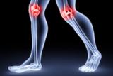 Osteoarthritis Series