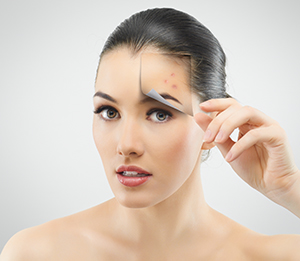 Fast Working Acne Treatments