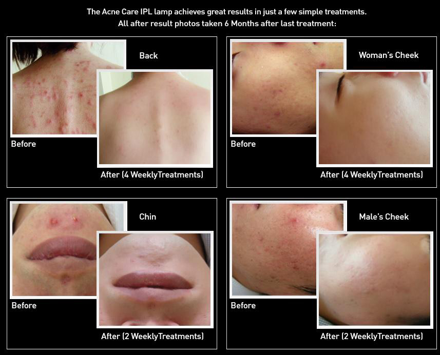 IPL acne results at the 6 month mark