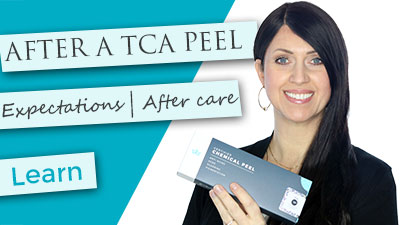 After a TCA Peel | What to Expect | Flaking | Discoloration | Healing | FAQ's