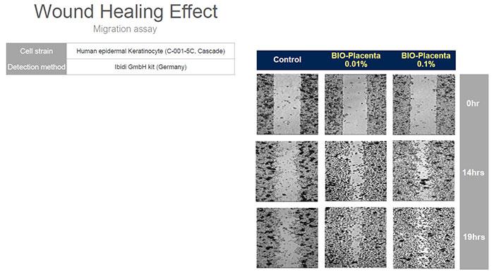 bioplacenta wound healing effect compare