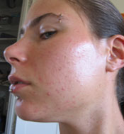 30% glycolic peel before