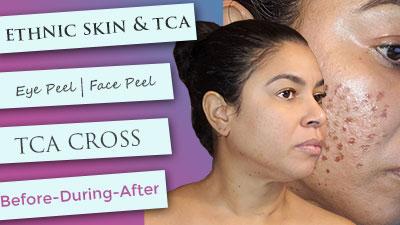 Ethnic Skin | TCA CROSS | Face peel | Eye peel