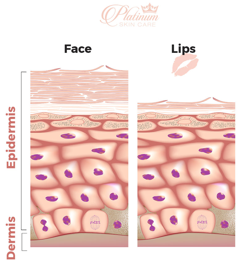 Lip peels | use caution as the lips have only 3-5 layers of skin as opposed to the face which has about 20. Use a milder, less deep penetrating acid when you choose to treat the lip area.