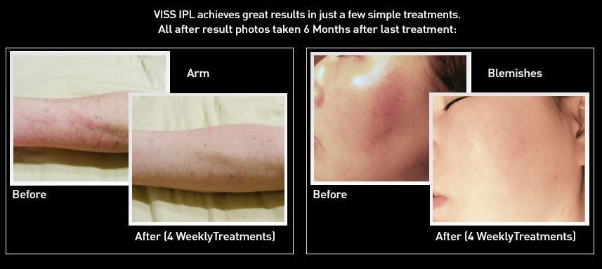 VISS Skin Rejuvenation cartridge results
