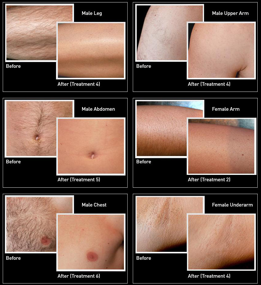 VISS IPL Hair Removal before/after photos. All taken one month after last treatment. *Treatments applied are notated in photos.