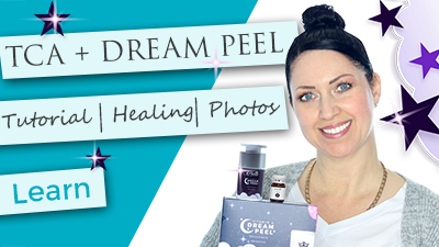 TCA + Vitamin A Dream Peel Finishing Layer Application Tutorial | Flaking Peeling Photos | How to