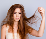 HOW TO GET RID OF DANDRUFF: What is Dandruff?
