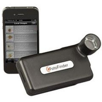 Handyscope Dermatoscope for Apple iPhone