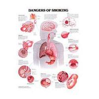 Anatomical Chart, Dangers of Smoking