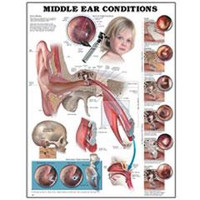Middle Ear Conditions