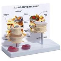 Lumbar Vertebrae with Prolapsed Disc Model