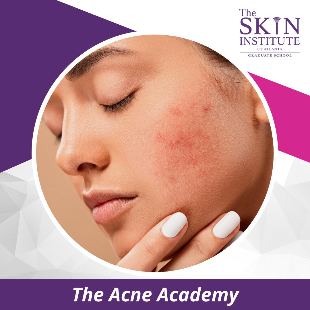 acne-academy