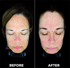 dermaplaning-results-before-after.jpg
