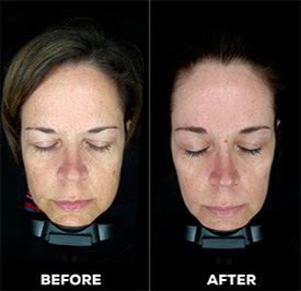 dermaplaning-treatment-before-after.jpg