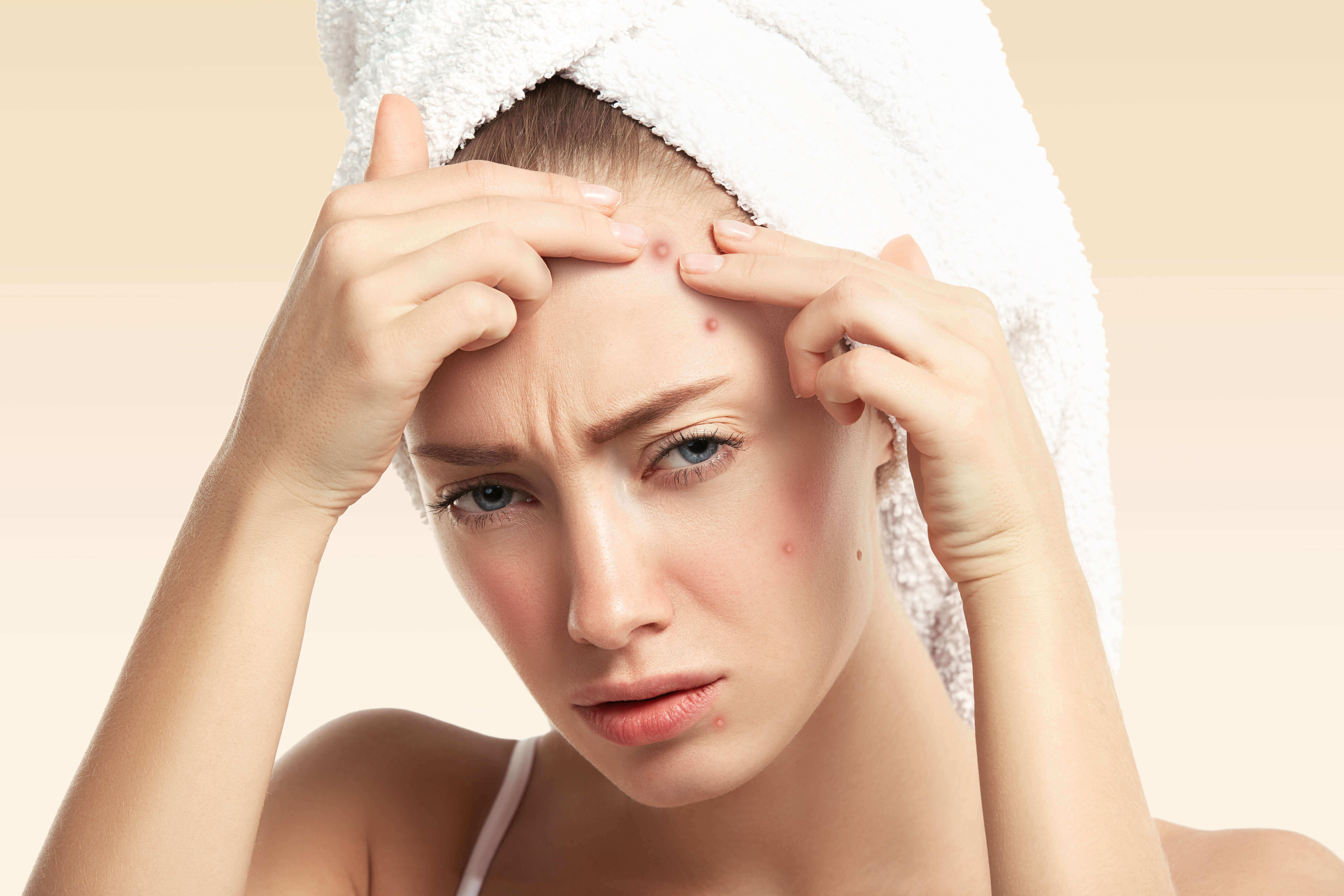 A blonde woman with an acne outbreak on her face