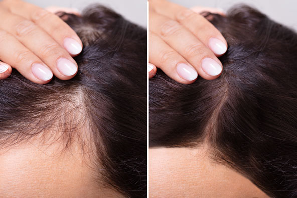 istock-1166079637-hair-loss-pic-for-web.jpg