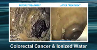 Colorectal Cancer and Ionized Water
