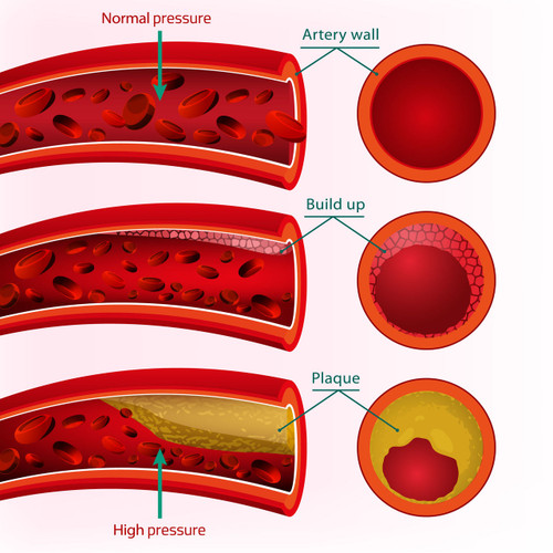 Screening for root causes of high blood pressure.