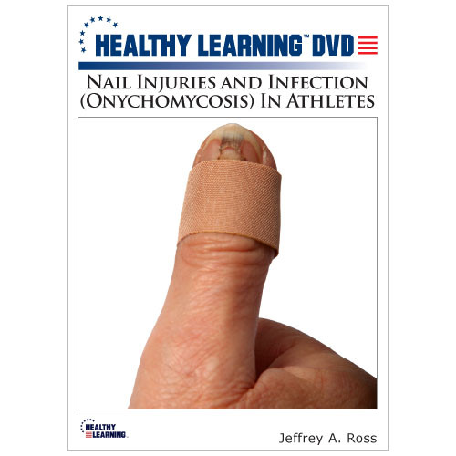 Nail Injuries and Infection (Onychomycosis) In Athletes