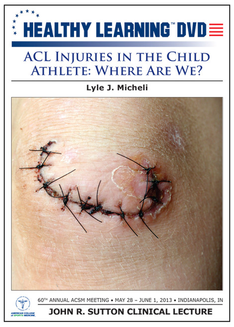 ACL Injuries in the Child Athlete: Where Are We?