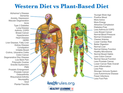 Western Diet vs Plant-Based Diet - Poster