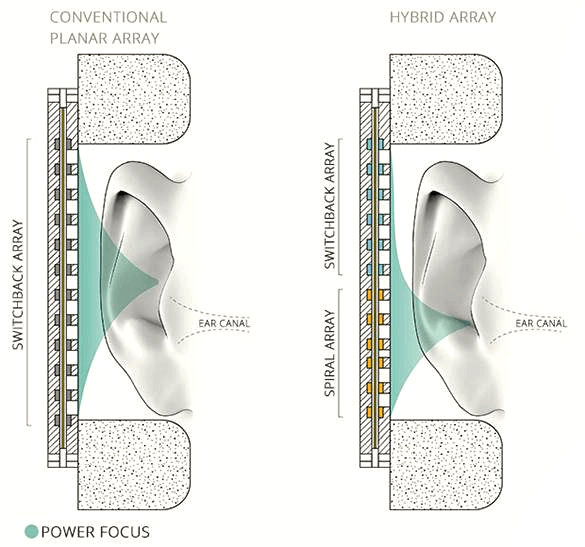comparison diagrams of conventional planar array and hybrid relay in relation to the ear canal