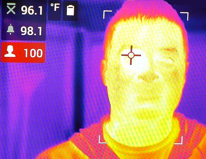Elevated Body Temperature Example
