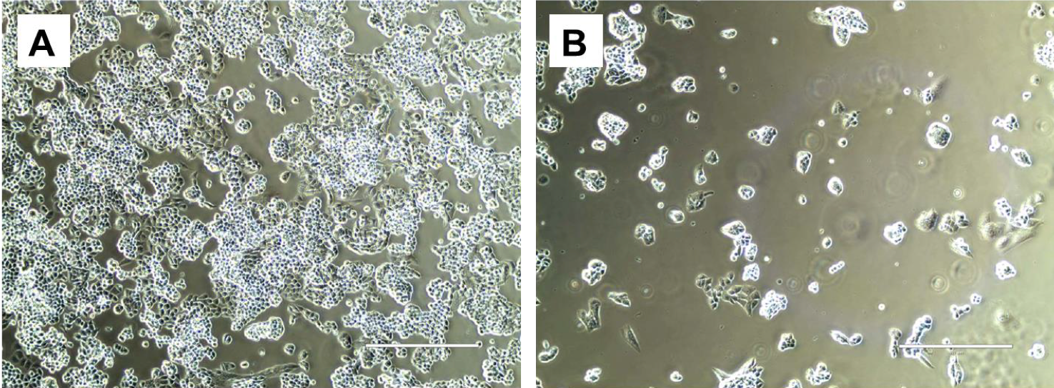 exosomes-ovarian2.png