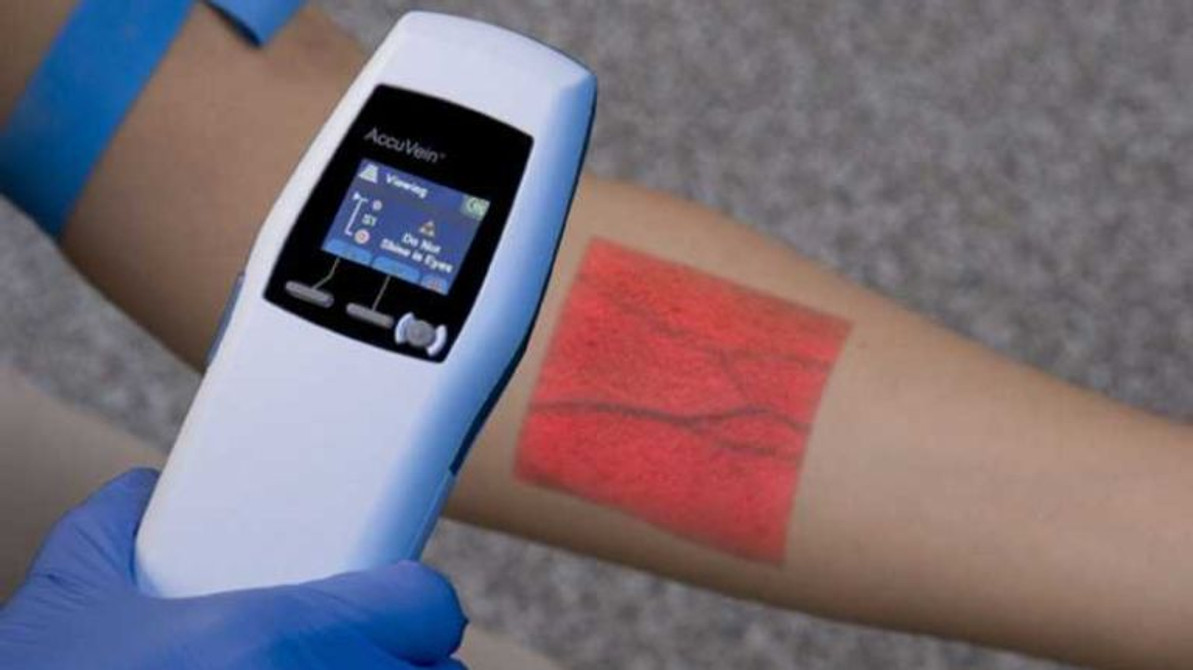 How Does a Vein Finder Work?