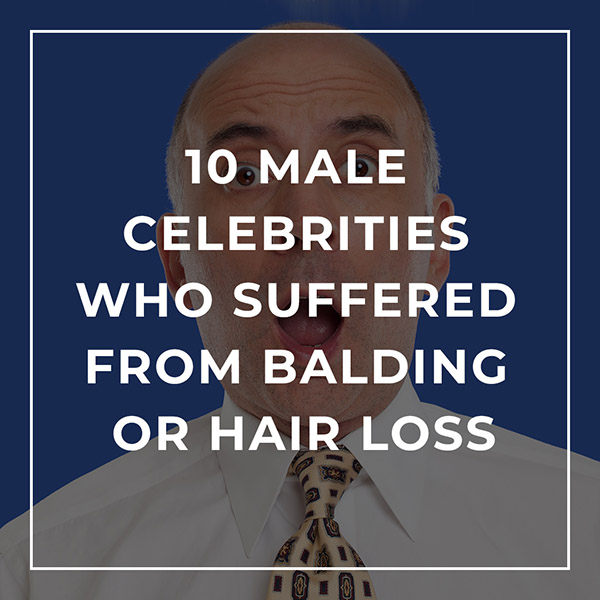 10 Male Celebrities Who Suffered from Balding or Hair Loss