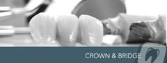 Crown & Bridge Products