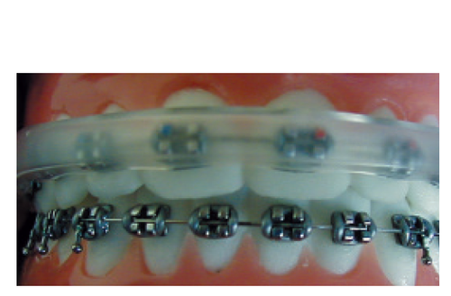 Orthoquest - Cover-Ups for Metal Brackets